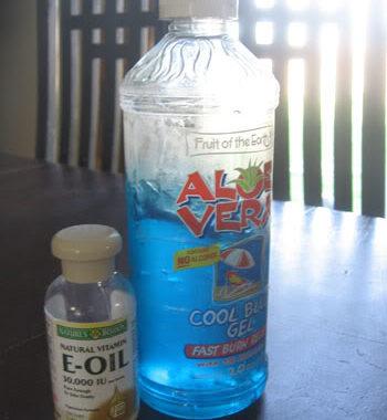 Secret recipe for healing sunburns
