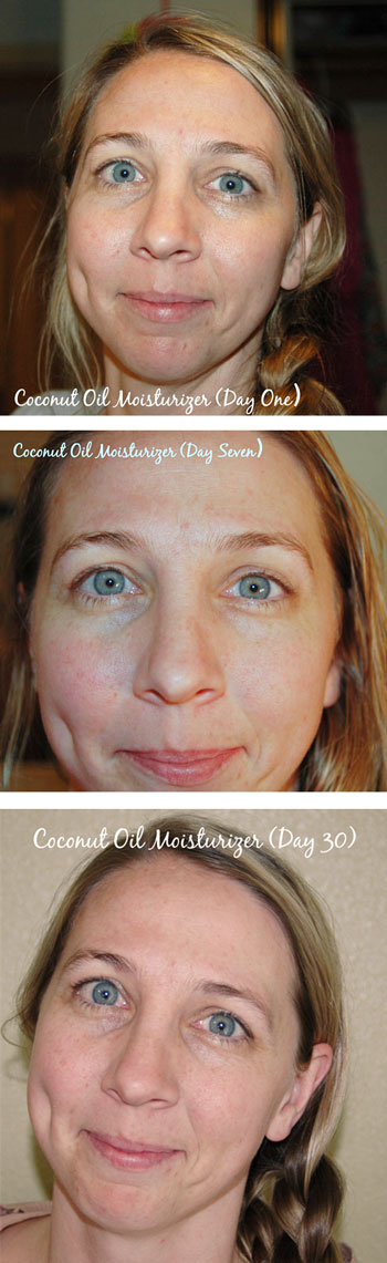 Coconut_OIL_Moisturizer